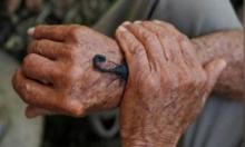 كوبا: سم العقرب في محاربة الأورام