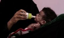 اليمن: حالة انهيار شامل للنظامين الصحي والاقتصادي