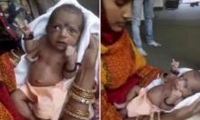 الهند: وُلِدت بعيب خلقي فقُدِّست كإله