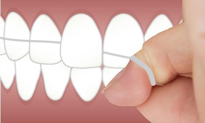 خيط الأسنان قد يحتوي على مواد سامة