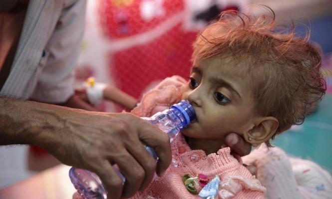 اليمن: 22 مليون مواطن غير مؤمنين غذائيًا