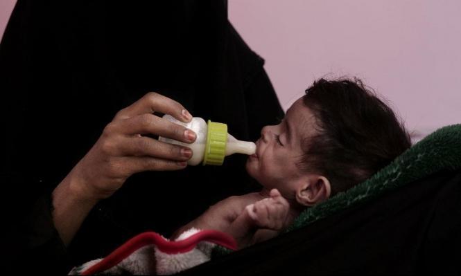 اليمن: 10 ملايين شخص يُعانون من الجوع الشديد