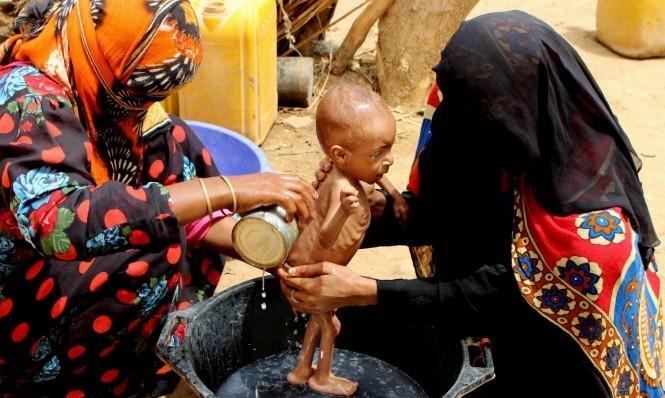 اليمن: أكثر من 3600 حالة إصابة بوباء الكوليرا في تعز