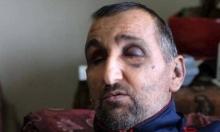 اعتداء وحشي لجنود الاحتلال على فلسطيني كفيف