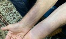 طبيب يتعرض لاعتداء من الشرطة في حيفا