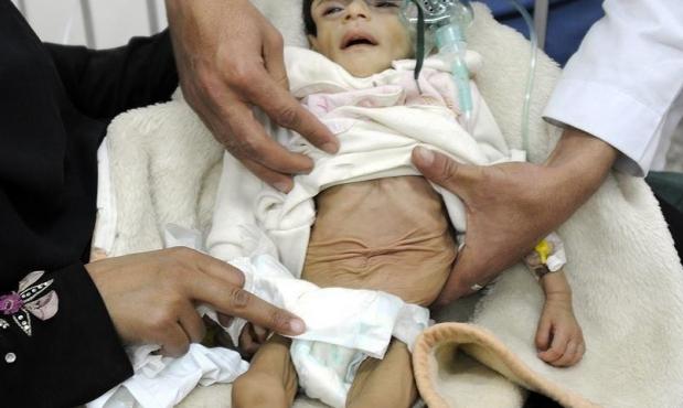 """""""يونيسيف"""": حرب اليمن أدت إلى مقتل 7300 طفل على الأقل"""