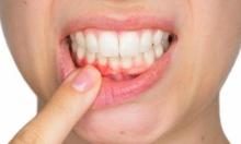 بكتيريا تنتقل من الفم للمخ... العناية بالأسنان تُجنّبك الزهايمر