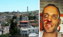 قريب شاب من كفر برا: الشرطة اعتدت عليه بوحشية