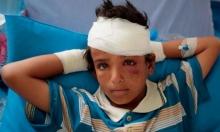 تقرير: أكثر من 90 ألف شخص لقوا حتفهم في الحرب على اليمن