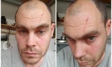 الاعتداء على الناشط بولاك ضربا وبالسكّين