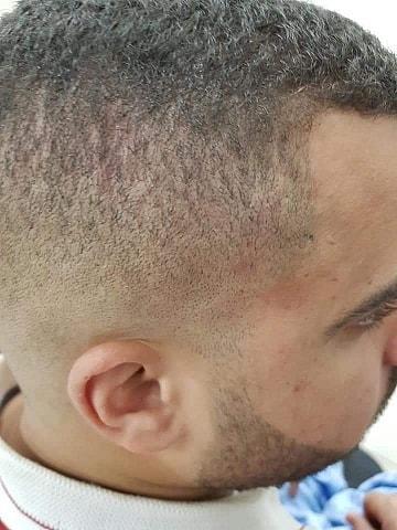 اعتداء عنصري على شابين من كفر قرع