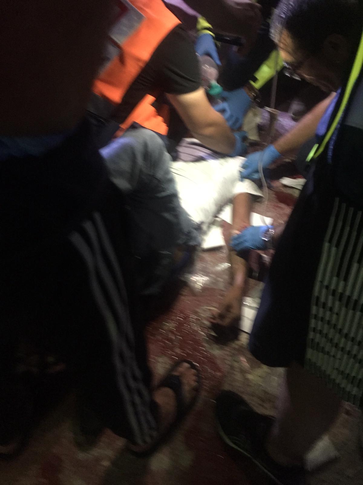 باقة الغربية: إصابتان في شجار خلال حفل زفاف