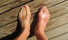 التهاب المفاصل الحاد يضاعف خطر الإصابة بالفشل الكلوي