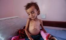 الصحة العالمية: بدون علاج... السرطان حكم بإعدام 35 ألف يمني