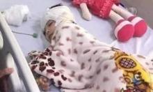 مصر: وفاة طفلة عذبتها جدتها وأنباء عن اغتصاب خالها لها
