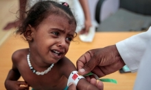 257 حالة وفاة بالدفتيريا في اليمن خلال 26 شهرا