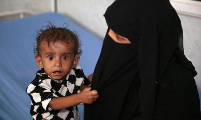 ربع مليون يمني على حافة الموت جوعًا