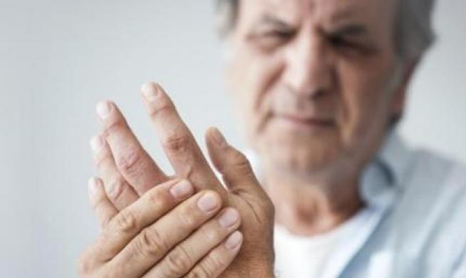 الكشف عن عقار أكثر فاعلية في علاج التهاب المفاصل الروماتويدي