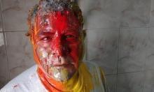"""مصر: الحقوقي جمال عيد يتعرض لاعتداءات """"مجهولة"""" جديدة"""