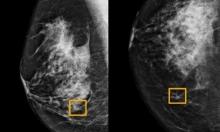 """برنامج من """"جوجل"""" يكشف عن سرطان الثدي بدقّة!"""