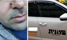 شبان يهود يعتدون على سائق أجرة من الطيرة