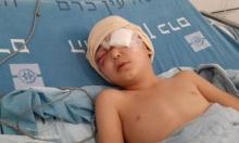 الأطباء يقررون استئصال عين الطفل عيسى التي فقأها الاحتلال