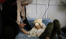 استئصال عين الطفل مالك عيسى الذي أُصيب برصاص الاحتلال