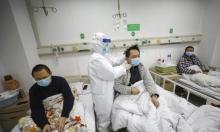أعراض جديدة: كورونا جعل جلد ناجيين صينيين داكن اللون