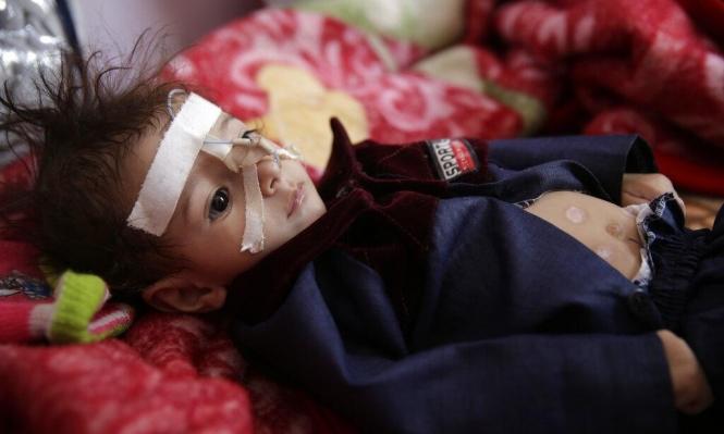 اليمن: شحّ التمويل يسلب مآوِ مليون نازح