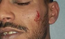 تل السبع: تأجيل فرح بلال الأعسم إثر اعتداء الشرطة عليه