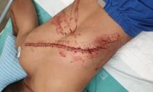 أبو شحادة حول الاعتداء على الشاب محمد نصاصرة: لن نقف مكتوفي الأيدي