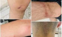 جلجولية: إغماء قاصر بسبب اعتداءات الشرطة خلال جلسة تحقيق