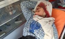 """غزة: """"ضربوا الحجة صفية لتتنازل عن أرضها"""""""