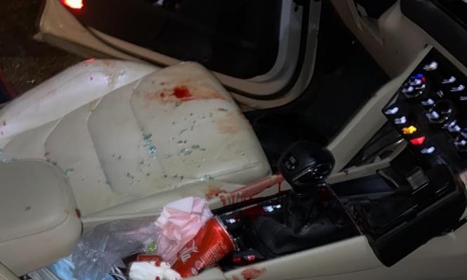 النقب: اعتقال 3 شبان بشبهة الضلوع بجريمة إطلاق نار على مدير مدرسة