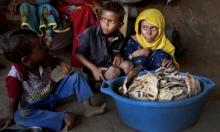 الأمم المتحدة: ملايين الأطفال اليمنيينيُدفعون إلى حافة المجاعة