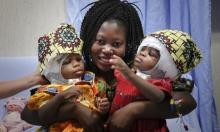 دراسة: وفاة الأطفال السود أعلى من البيض بعد العمليات الجراحية