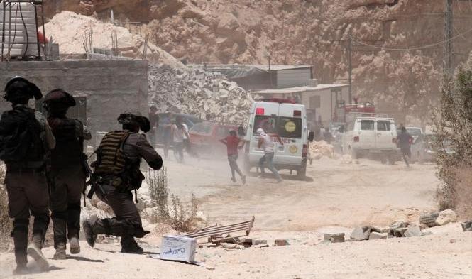 إصابات بمواجهات مع جيش الاحتلال بمخيّم قلنديا وكفر عقب