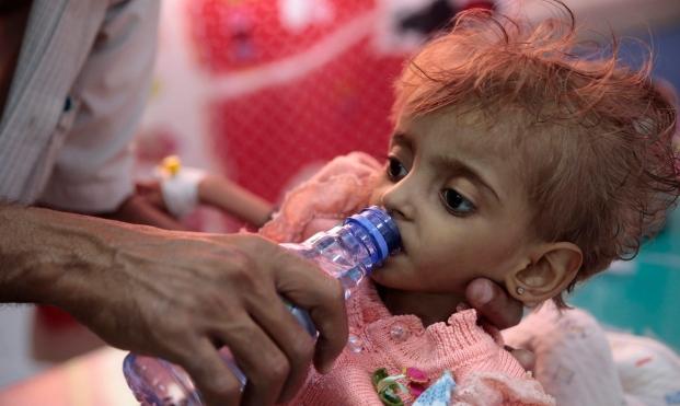 الأمم المتحدة تحذّر من مجاعة في أربع دول منها اليمن