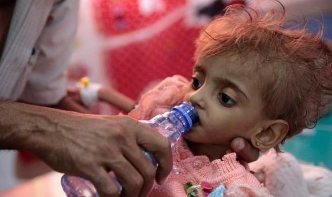 """""""الصحة العالمية"""": مرض الدفيتريا لا يزال متوطنا في اليمن"""