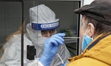 وقت بقاء فيروس كورونا على الجلد البشري يفوق الإنفلونزا خمس مرات