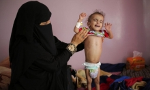 الأمم المتحدة تحذَر: اليمن يقترب من أسوأ مجاعة عرفها العالم منذ عقود