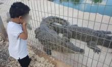 تحسن حالة الطفل من يافا بعد تعرضه لعضة تمساح