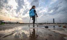 طفلة سورية فقدت ساقها وأخاها بغارة روسية