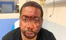 غضب في فرنسا: الشرطة عنصريّة وعنيفة تجاه السود
