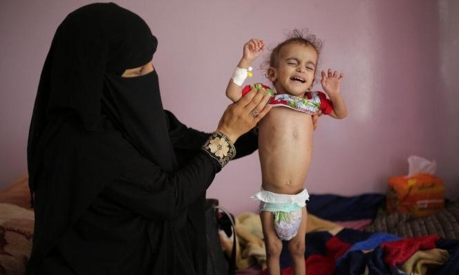ثلثا سكان اليمن يفتقرون للمياه النظيفة وللخدمات الصحيّة