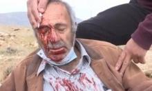 الاحتلال يجرف أراضٍ زراعيّة وإصابة مسن فلسطيني إثر اعتداء للمستوطنين