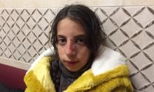 إصابة طفلة إثر محاولة مستوطنين اختطافها جنوبي نابلس