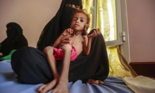 """العفو الدولية: منع النساء اليمنيّات من العمل في المطاعم """"مخز"""""""