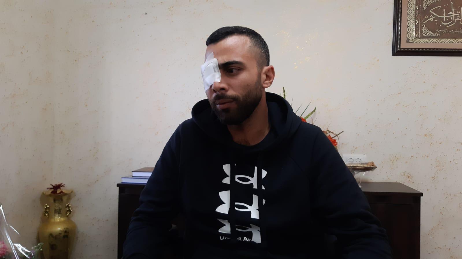 """أحمد ذياب من طمرة: """"رصاصة الشرطة فقأت عيني وقتلت حلمي"""""""