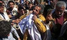 تحذيرات أممية: سوء التغذية يلاحق نصف أطفال اليمن